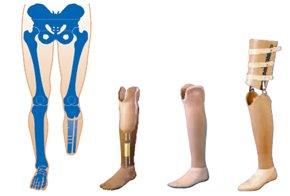Satın al Diz altı protez