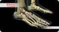 Sinüs tarsi implantı