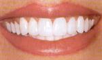 Sipariş Diş Beyazlama