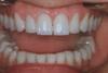 Sipariş Endodonti (kanal tedavisi)