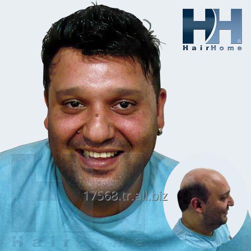 Sipariş Protez saç, Ameliyatsız saçlanın ve doğal görünün.