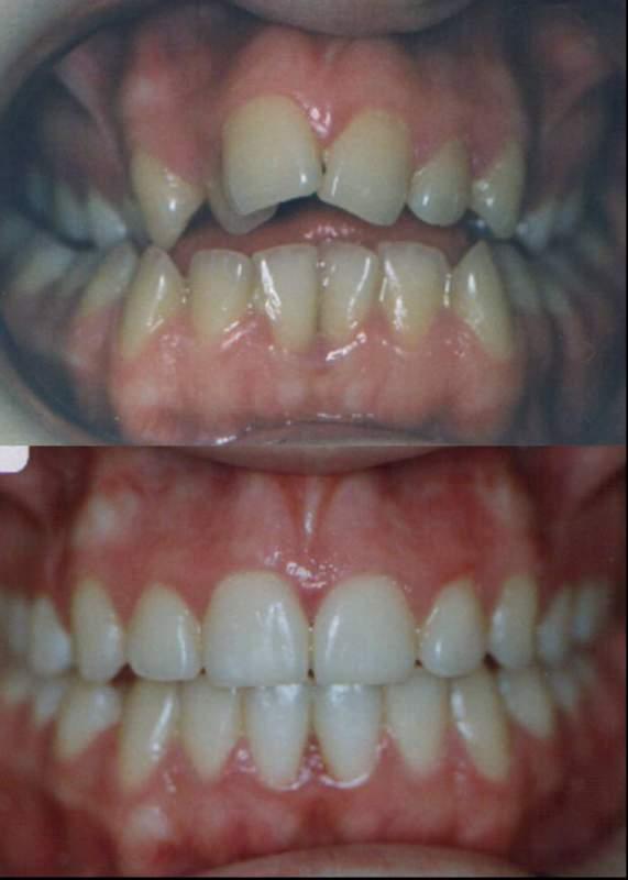 Sipariş Orthodontic treatment, Ortodontik tedavi, Braketler, estetik dişler, estetik teller, esthetic dental treatment
