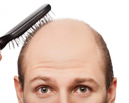 Sipariş Hair Transplantation