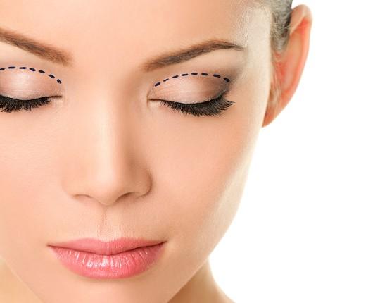 Sipariş Upper Eyelid Aesthetics