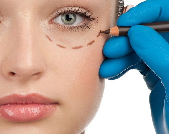Sipariş Lower Eyelid Aesthetics