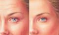 Genç Görünmek İçin Yaptırılan Yüz ve Boyun Ameliyetı